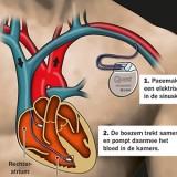 Hoe werkt een pacemaker?